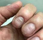 Here you can see how the lines move up when nail grows